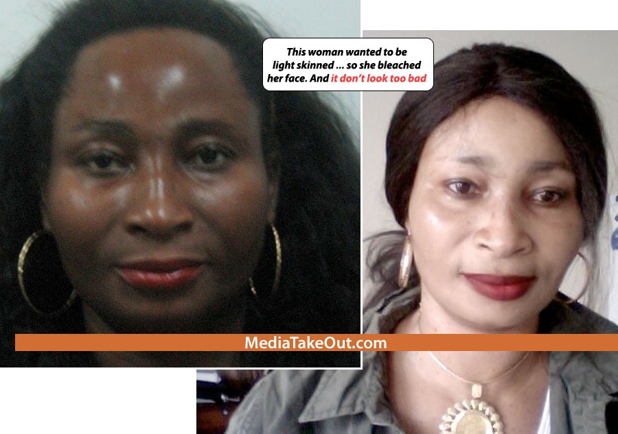 Nigerian Women Are Top Users Of Bleaching Creams W H O